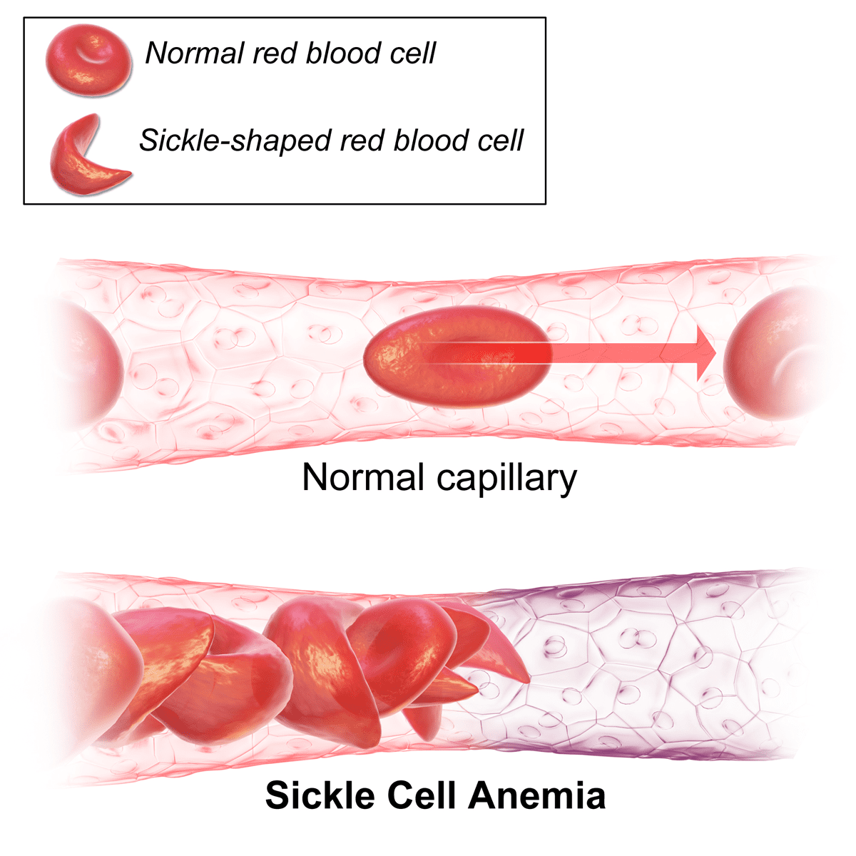 cell anemia sickle cell anemia