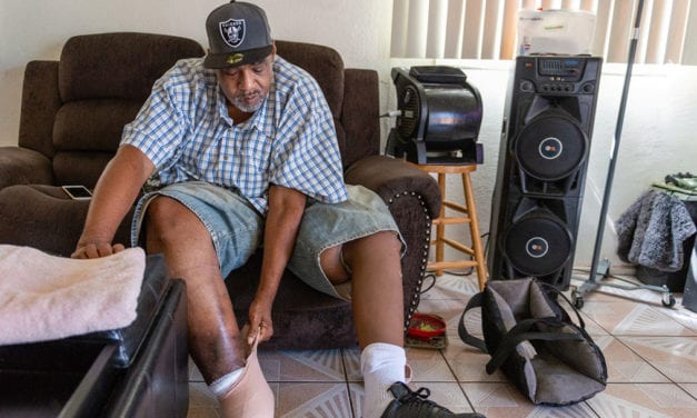 Diabetic Amputations A 'Shameful Metric' Of Inadequate Care